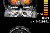 fMRI: Uncertain Uncertainties