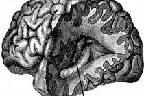 Studying Mood Disorders With MRI Brain Analyses