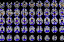 How Anesthesia Affects the Brain