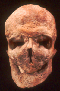 An image of a skull deformed by Paget's disease. In this condition the bone is abnormally thick because of huge growth. This could have been the same condition which the Viking Egil had, allowing him to withstand axe blows to the head. Courtesy of Scientific American.