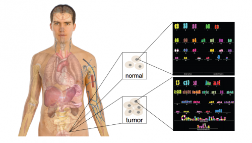 The contrast between a normal genome and a cancer genome is depicted in an individual. The cancer genome is clearly distorted and did not replicate properly. The goal is to find out which key mutations lead to the development of such rogue tumor cells with grossly distorted genomes. Courtesy of Mark Gerstein.