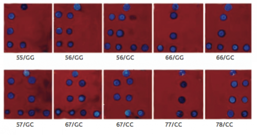 Rapid determination of MIF allele in areas without genomic analysis capabilities is now available through the use of biochips, which measure only 1cm in length. Pictured above are biochips showing every combination of MIF allele (5, 6, 7 or 8 short DNA repeats) and a single nucleotide polymorphism. Courtesy of Dr. Bucala.