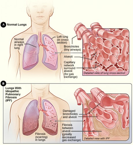 A comparison of normal and IPF-diseased lungs. Courtesy of National Institutes of Health.