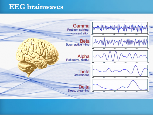 Electroencephalograms (EEGs) can record waves of different frequencies, including alpha waves and gamma waves. A spike in gamma wave activity was measured in the rats' brains immediately after cardiac arrest. Photo courtesy of Transcendental Meditation.