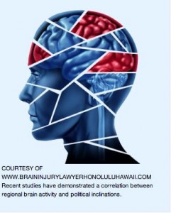 3.Recent studies have claimed a correlation between regional brain activity and political inclinations. Image courtesy of Brain Injury Lawyer Honolulu Hawaii.