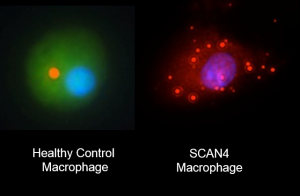 1.The inflammatory machinery in immune cells carrying the NLRC4 mutation fails to assembly correctly (right), in contrast to healthy cells. Image Courtesy of Neil Romberg.