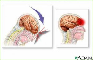 A concussion occurs when the brain smashes into the skull, causing bruising and swelling. Image courtesy of whyfiles.org.