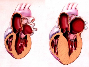 Late development of a thickened heart wall can complicate correct diagnosis of a diseased heart. Image courtesy of Geneva Foundation for Medical Education and Research.