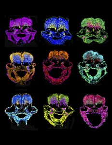 Hindbrain cross-sections show zebrafish embryos at 48 and 60 hours post fertilization. The absence of miR-107 promotes neurogenesis. Image courtesy of Emma Ristori.