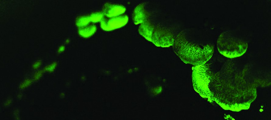 Q&A: How Do Some Organisms Glow in the Dark?