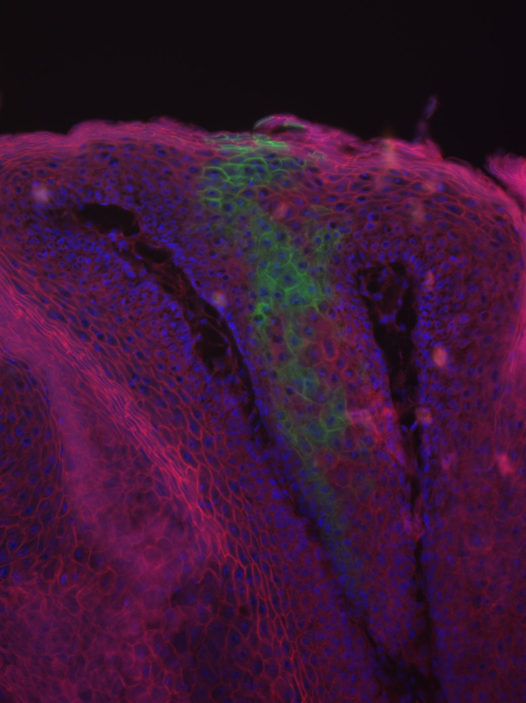 New Research Sheds Light on Pathway between Genetic Factor and Skin Tumors