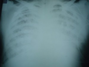 An x-ray of a leptospirosis patient shows massive pulmonary bleeding, an often fatal latter-stage symptom of the disease. Image courtesy of Albert Ko.