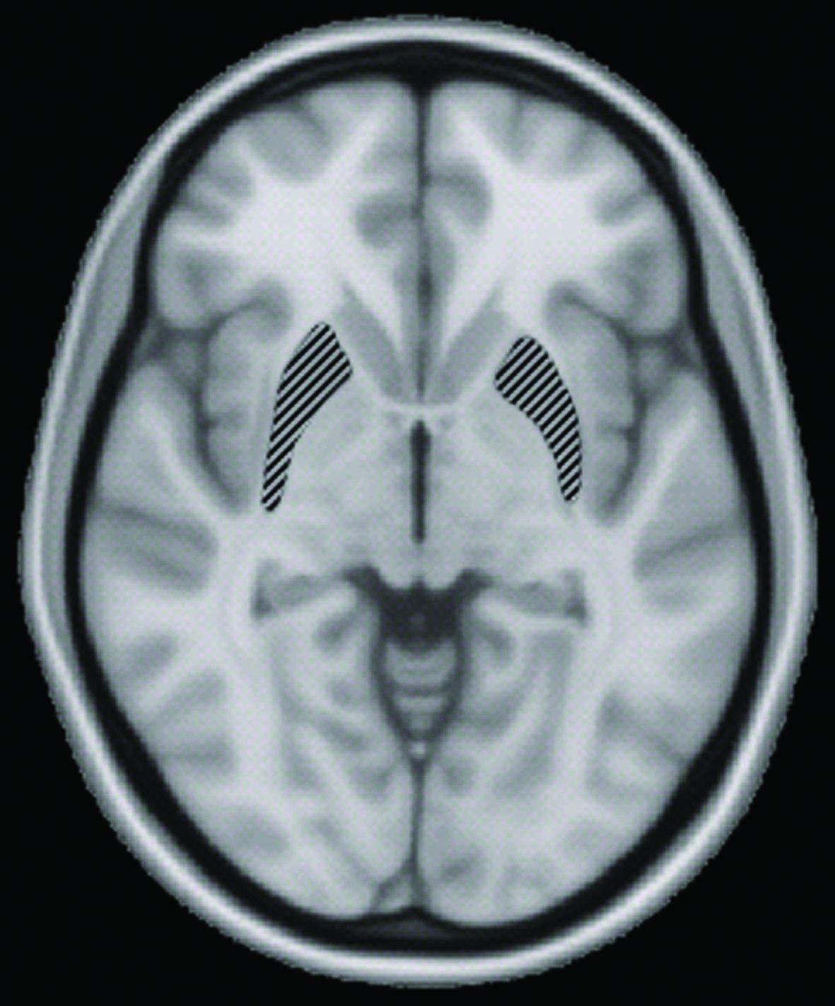 Accelerating MRI: A novel sampling method to shorten MRI scan time