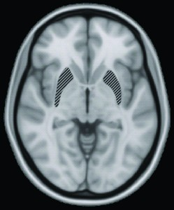 In the study conducted by Levy's team, brain volume and hippocampus size were monitored using MRIs like the one seen here. Source: Wikimedia Commons