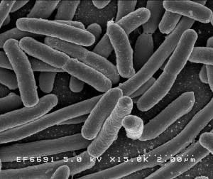 Escherichia coli is a rod-shaped bacterium; certain strains are associated with food-borne illness. Image courtesy of Wikimedia Commons.