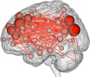 The most unique set of connections in the brain (i.e. the connections that contributed most to the discriminatory power of the profiles).
