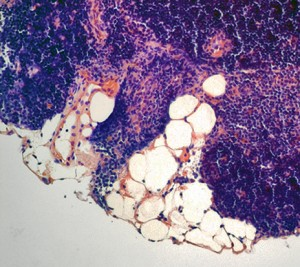 As we age, our thymus becomes packed with fat cells, which compromises the organ's function. Image courtesy of Vishwa Dixit