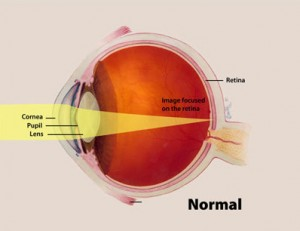 The convex lens of the eye focuses light onto the back of the eye, at the retina. Cyanobacteria work similarly to detect light sources. Image courtesy of National Eye Institute, National Institutes of Health.