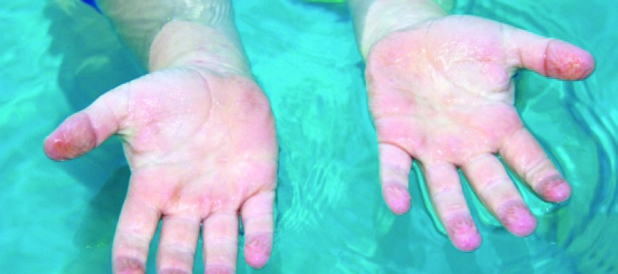Q&A: What causes Pruney Fingers?