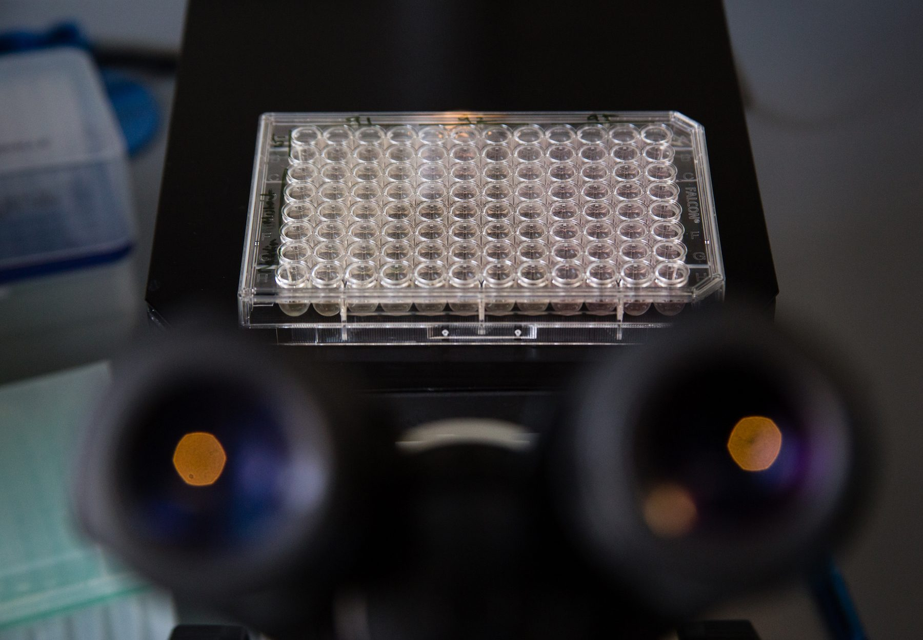 Targeted at the Checkpoint: How memory cells could be the future of cancer treatment