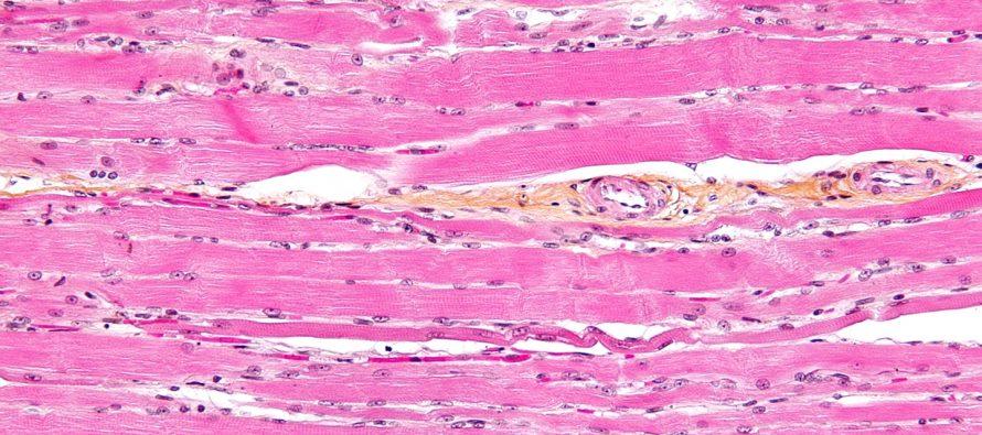 Bull's Eye: Targeted Immunotherapy of Myasthenia Gravis
