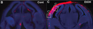 Cellular damage was imaged using the fluorescent reporter system in control mice (left) and mice exposed to alcohol during prenatal development (right). Damaged cells are shown by the red fluorescence.