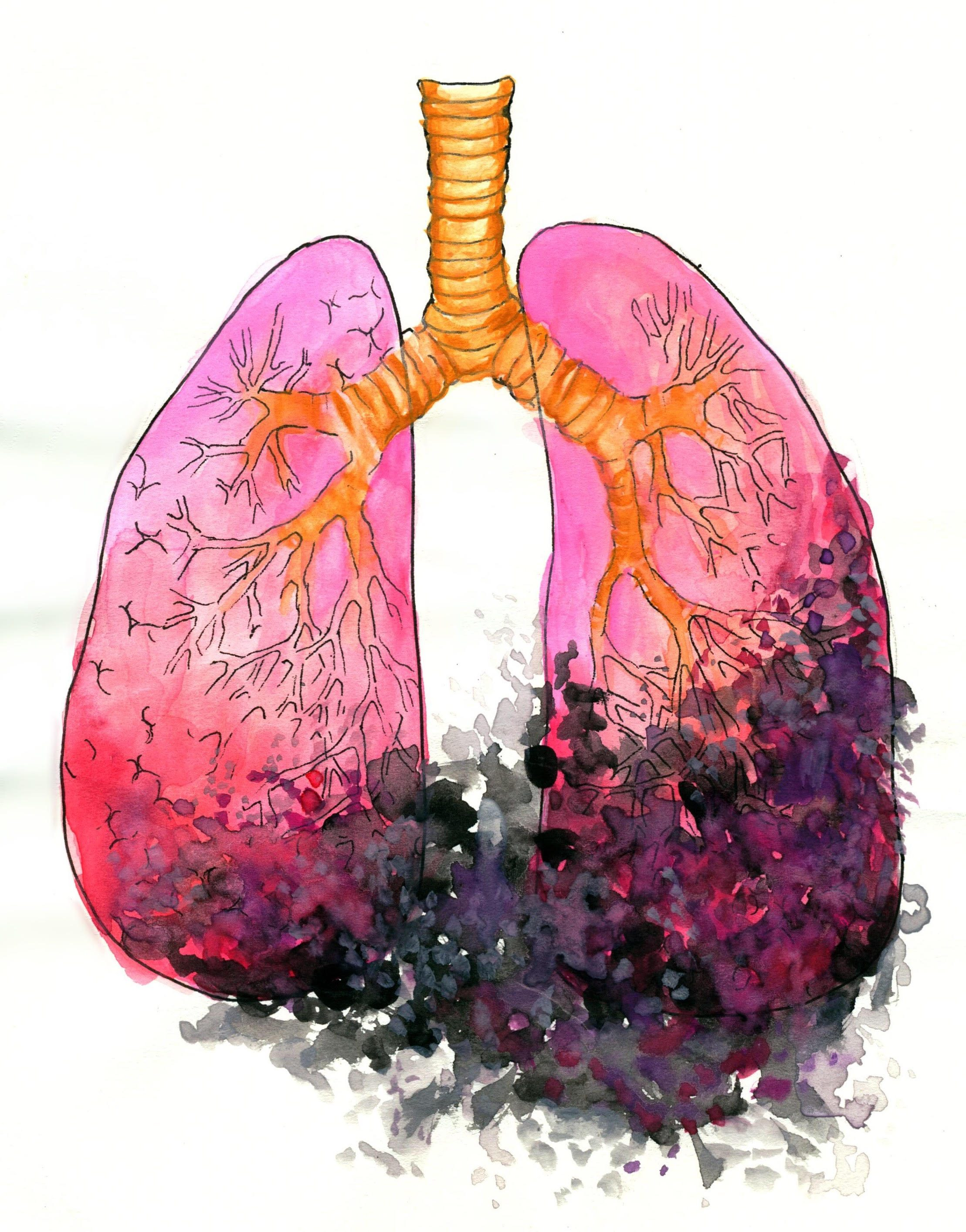 Modeling Lungs for a New Cure