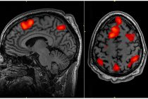 MRI Scan Detects Signs of Schizophrenia: Brain imaging test predicts likelihood of developing psychosis and schizophrenia