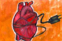 Implications of Impella: Rethinking Treatments for Cardiogenic Shock