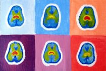 Why Representation Matters: Holistic Approaches To Treating The Human Brain