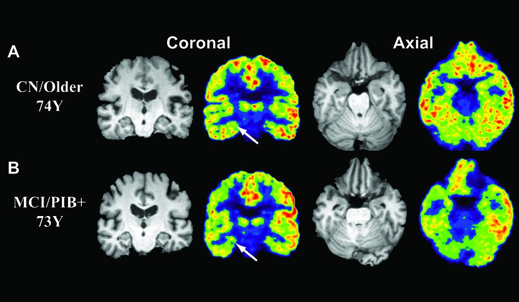 A Look into Alzheimer's: Understanding a new imaging technique essential for the future of Alzheimer's treatment