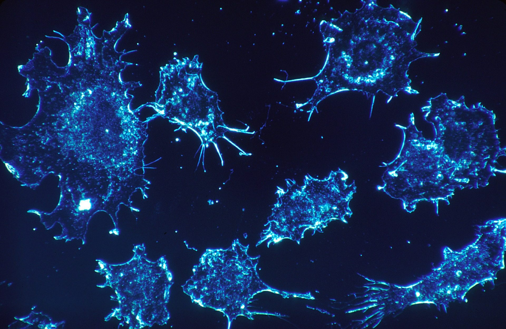 Finding Hidden Cancer Cells: New Study Mobilizes the Immune System to Find Undetectable Cancer Cells