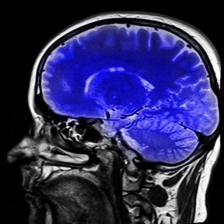 Automated Alzheimer's Predictions Using CT Image Segmentation